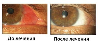 Глаз до операции и после