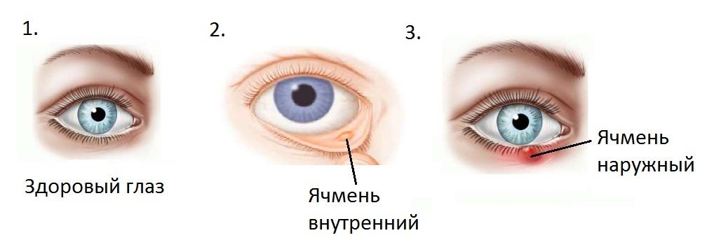 Здоровый глаз, наружный и внутренний ячмень
