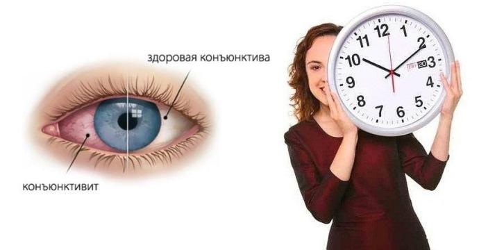 сколько дней лечится конъюнктивит?