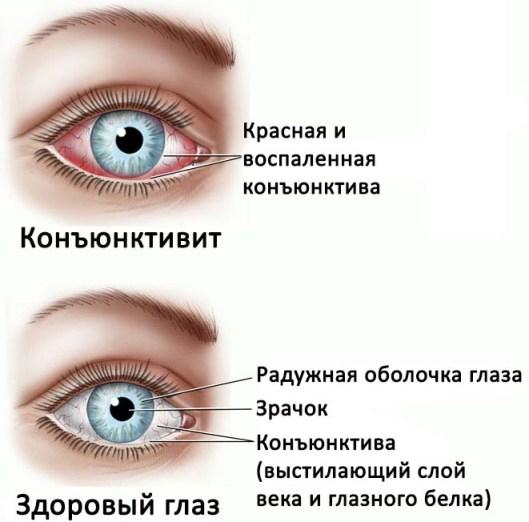 Как выглядит конъюнктивит по сравнению со здоровым глазом