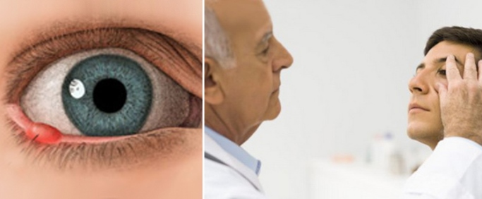 Ячмень и осмотр у офтальмолога
