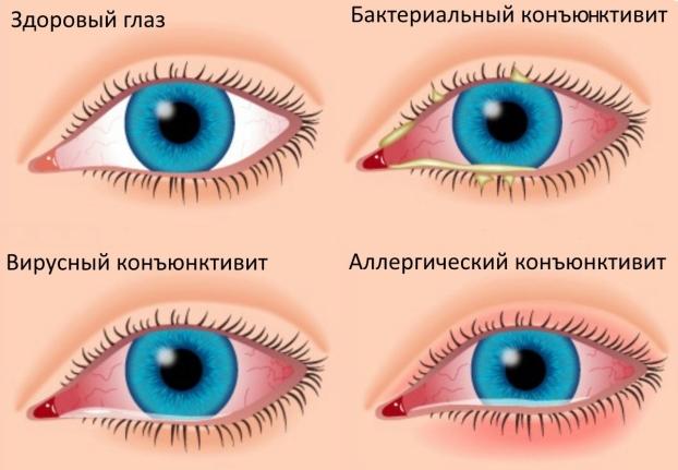 Виды конъюнктивита в зависимости от причины возникновения