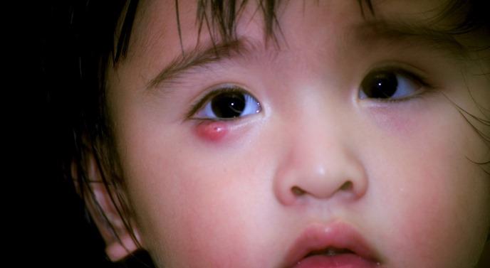 Ребенок страдает от ячменя