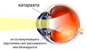 Диабетическая ангиопатия нижних конечностей код по мкб 10