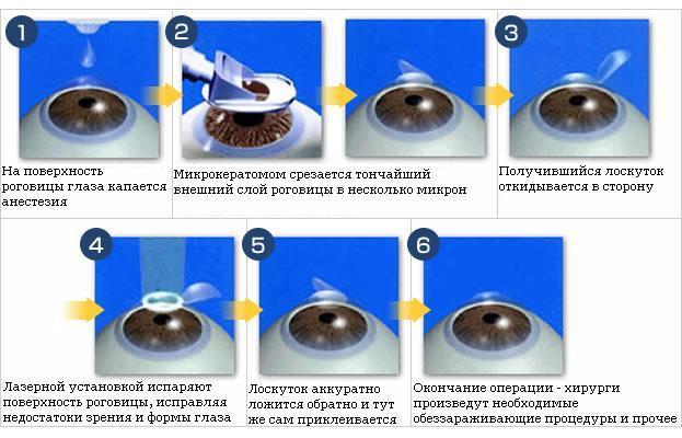 Этапы лазерного кератомилеза