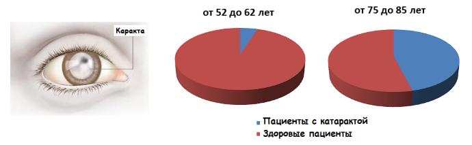 Диаграмма развития катаракты