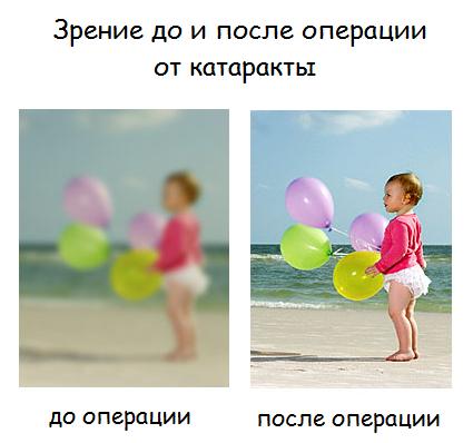 Зрение до и после удаления катаракты