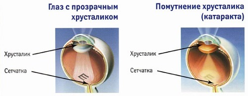 Катаракта и здоровый глаз
