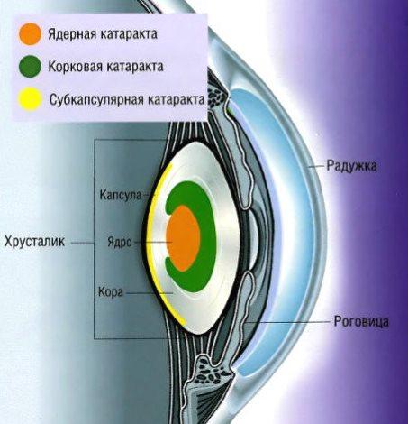 Типы катаракт
