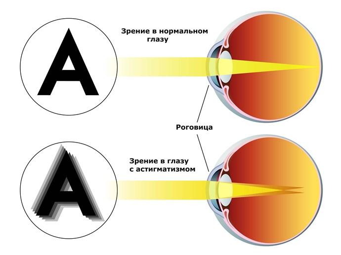 Плохое зрение человек