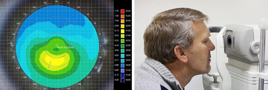 Кератометрия глаза и её результат