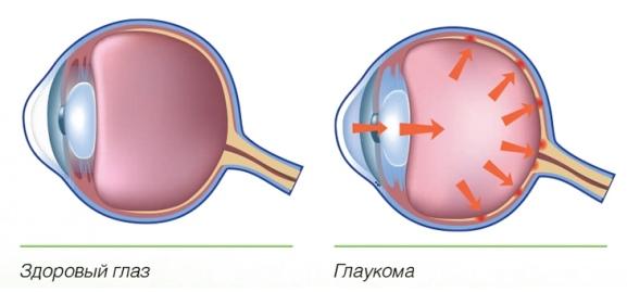 Принцип глаукомы