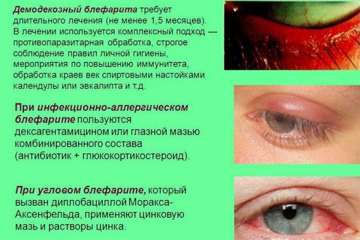 Некоторые типы блефарита