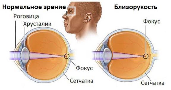 Развитие близорукости