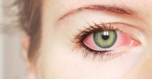 Красные глаза у девушки