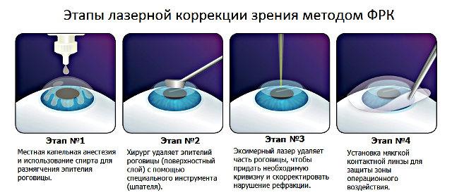 Этапы фоторефракционной кератэктомии