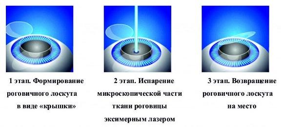 3 этапа проведения операции