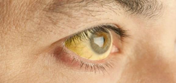 Желтизна склер глаз