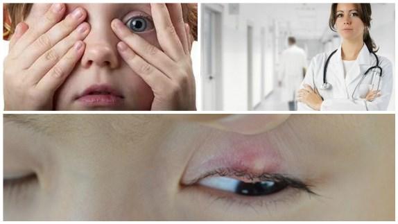 Детский халязион