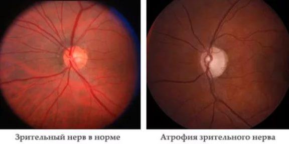 Атрофия зрительного нерва и здоровый нерв