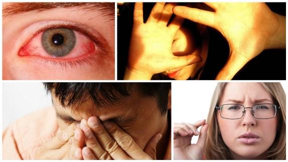 Симптомы сухого глаза в тяжелой форме