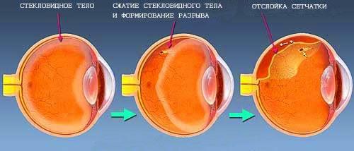 Процесс отслоения стекловидного тела