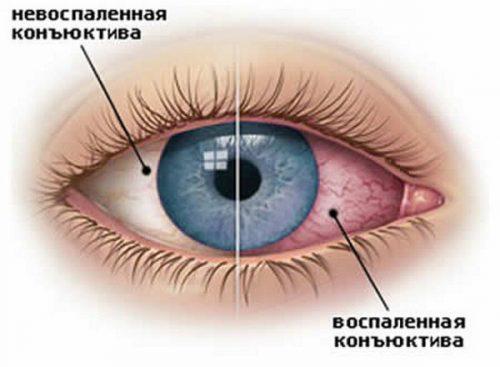Воспаленный и здоровый глаз