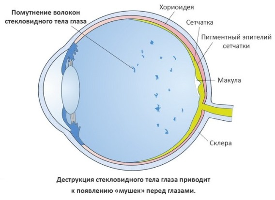 Мушки при деструкции стекловидного тела глаза