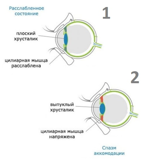 Описание спазма аккомодации глаза