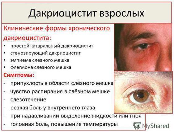 Формы и симптомы дакриоцистита