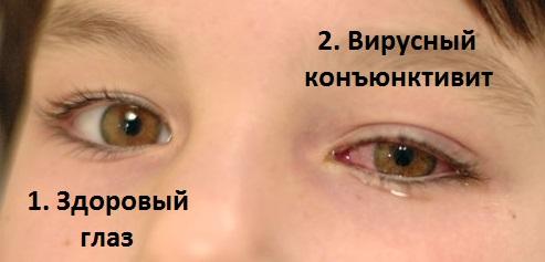 Здоровый и зараженный глаз