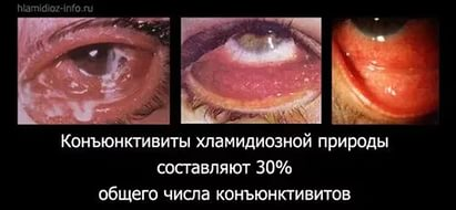 Статистика хламидийных конъюнктивитов