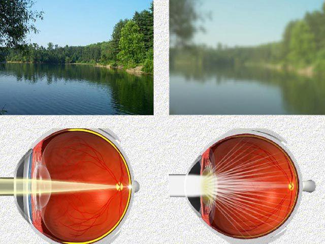 Как видит здоровый глаз и как глаз с катарактой
