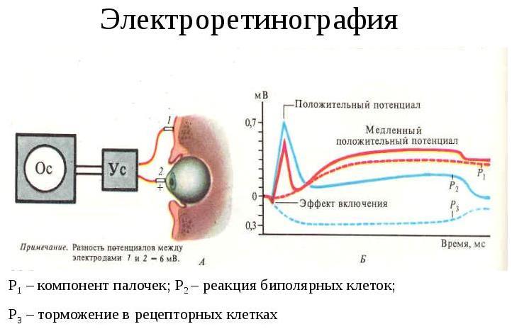 Принцип процедуры электроретинографии