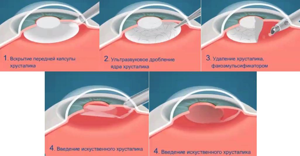 Ультразвуковая факоэмульсификация