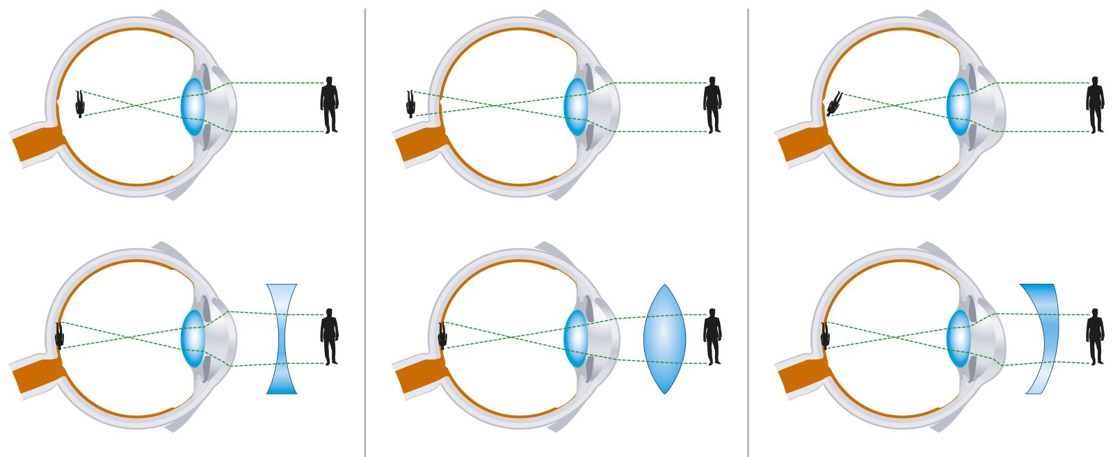 Различные типы линз при нарушениях зрения