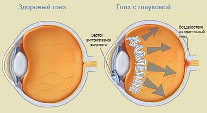 Здоровый глаз и глаз с глаукомой