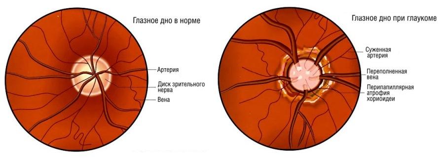 Глазное дно: норма и при глаукоме