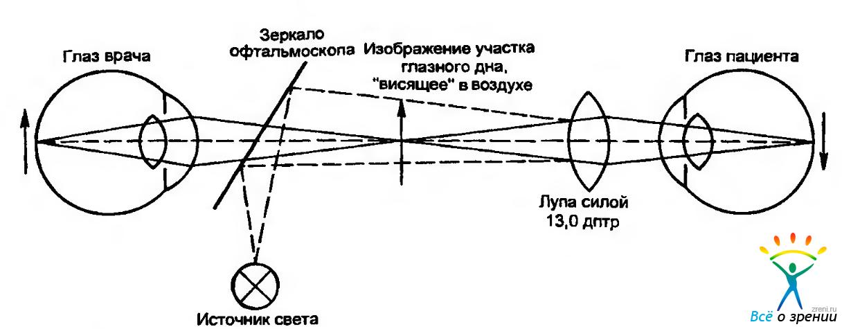 Упрощенная схема офтальмоскопии