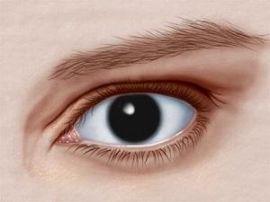 Аниридия - полное отсутствие радужной оболочки глаза