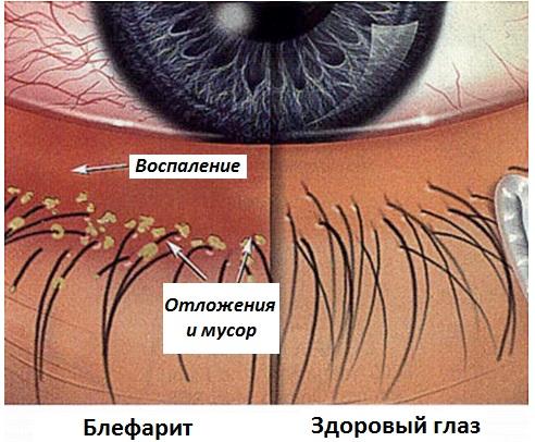Блефарит и здоровый глаз