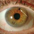 Как выглядит глаукома?