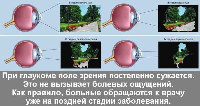 Сужение полей зрения на различных этапах глаукомы