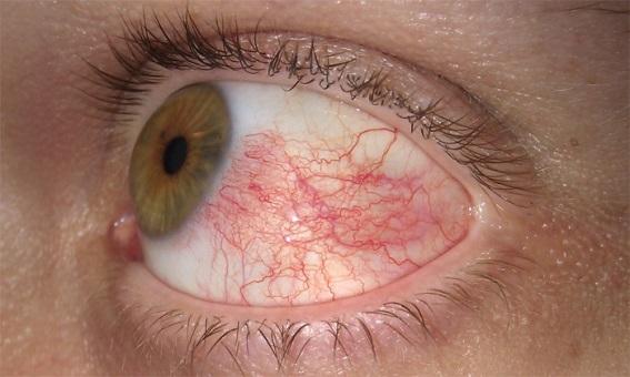 Как выглядит эписклерит?