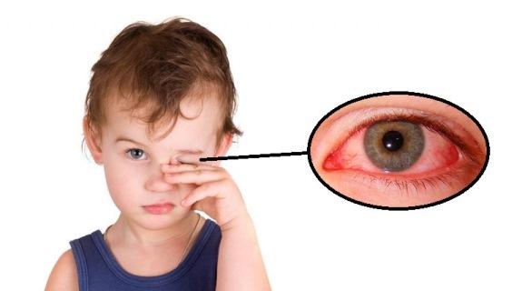 Покраснение глаз у малыша