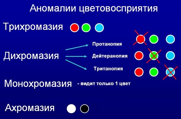 Аномалии цветовосприятия