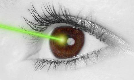 Современная лазерная коррекция