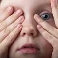 Ребенок и признаки халязиона