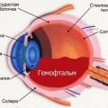 Схема гемофтальма глаза