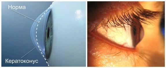 Как выглядит кератоконус глаза?